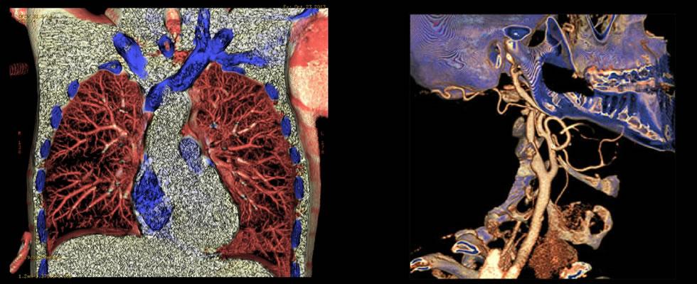 foto-tomografia1