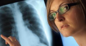 Interpretación de Estudios de Radiología Convencional