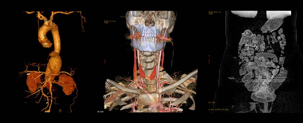 Interpretación de Estudios de Tomografía Multicorte