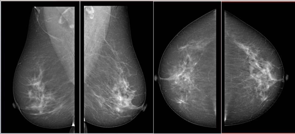 Mamografía y Tomosintesis