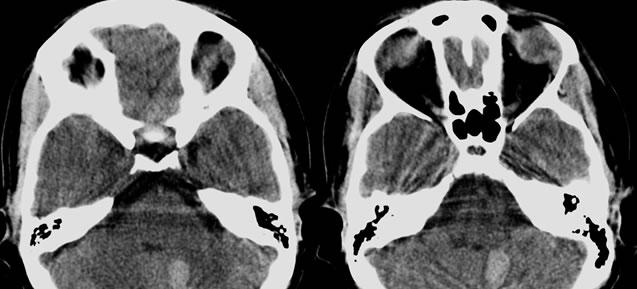 Infecciones del Sistema Nervioso Central Asociado con la Inmunodeficiencia Humana Virus Infección: Radiología patológica de correlación 1